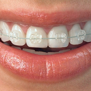 Clear Braces Service in Morpeth