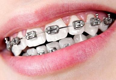 Conventional Dental Braces Service in Metford