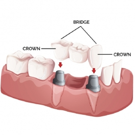 Dental Crowns and Bridges Service in East Maitland