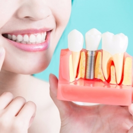 Dental Implants Service in Metford