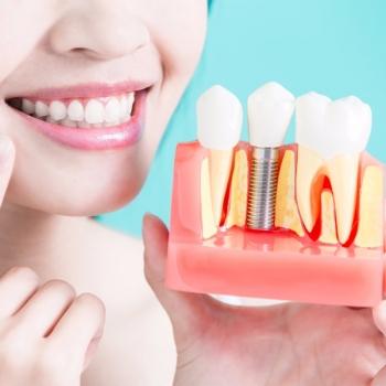 Dental Implants Service in Beresfield