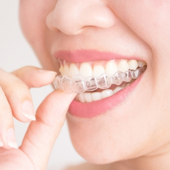 Invisalign clear Aligners Service in Morpeth