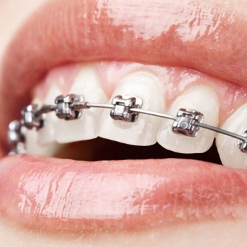 Metal Braces Service in East Maitland