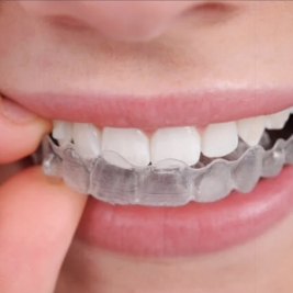 Mouth guards and Splint Service in Aberglasslyn
