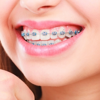Orthodontics Service in Rutherford