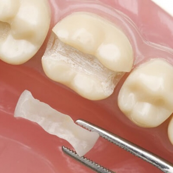Restorative Dentistry Service in Rutherford