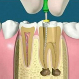 Root Canal Treatment Service in Gilleston Heights