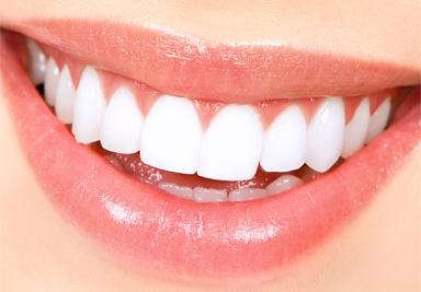 Teeth Whitening Service in Chisholm