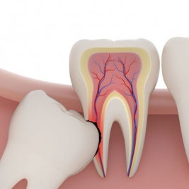 Wisdom Teeth Surgery Service in East Maitland