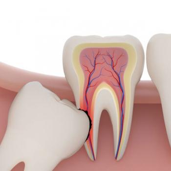 Wisdom Teeth Surgery Service in Raworth